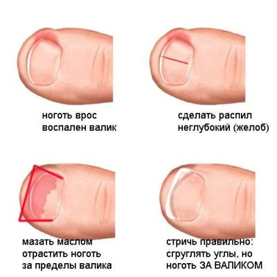 Лечение вросшего ногтя домашних условиях