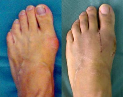 Причины появления шишки на большом пальце ноги