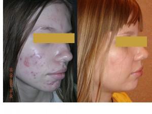Подтяжка лица, лазерная шлифовка лица, лазерная . - Light Clinic