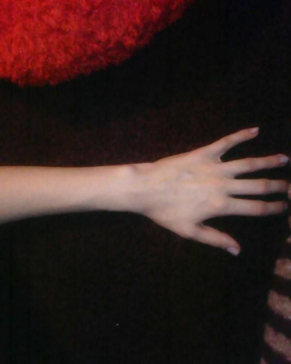 нистого ниссего опух и болит палец на ноге
