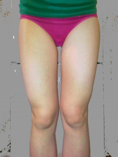 убираем жир с внутренней стороны ног