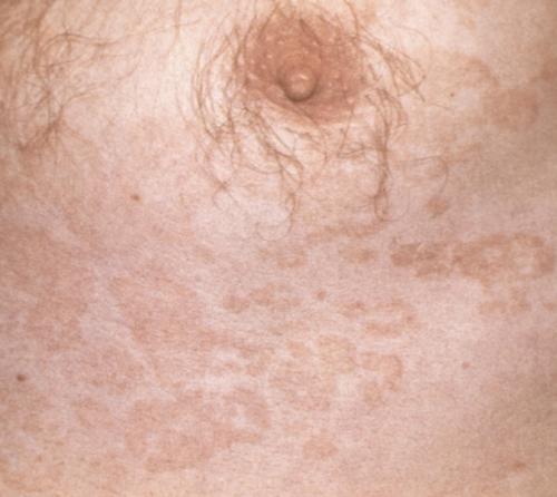 Крупные слившиеся розовые пятна на груди при отрубевидном лишае.  Версия для печати. на всю ширину экрана...
