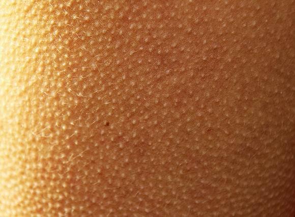 Грубая кожа на ягодицах