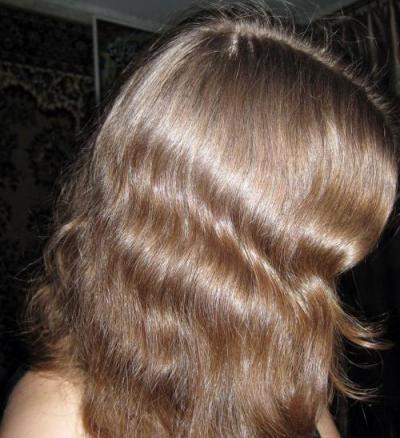 Псориаз кожи головы выпадают волосы чем лечить