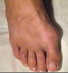 Что делать если болит косточка на стопе возле большого пальца