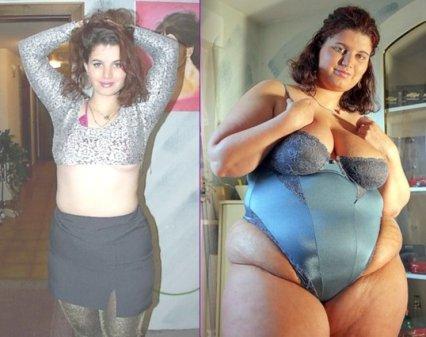 фидеризм до и после фото